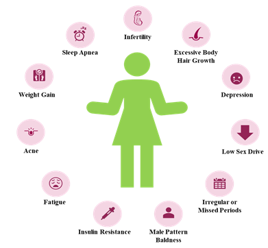 symptoms and diagnostic criteria for polycystic ovary syndrome?
